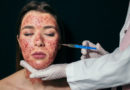 What to Know About Vampire Facials the Treatment That May Be Linked to Two Cases of HIV