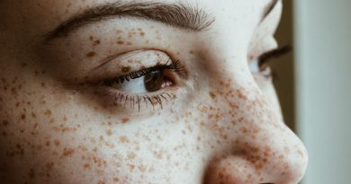 What Are Your Freckles Trying to Tell You?