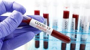 COVID-19: Ghana's Active Cases Rise To 831