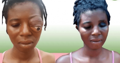 I Wanted To End My Life — Eye Tumor Patient Reveals