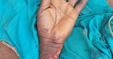 C/R: Mentally deranged man chops off a woman's hand, injures six others at Ajumako-Badukrom